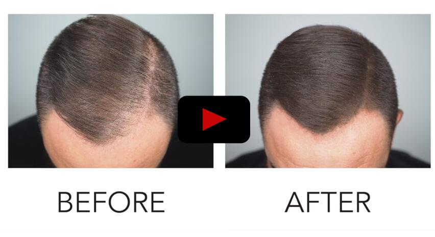 ספריי למילוי שיער דליל אצל גברים